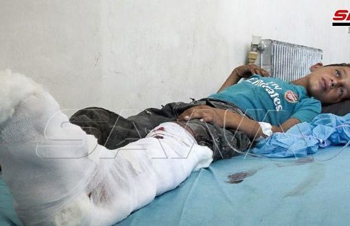 إصابة طفلين شقيقين نتيجة انفجار لغم من مخلفات إرهابيي (داعش) بريف دير الزور